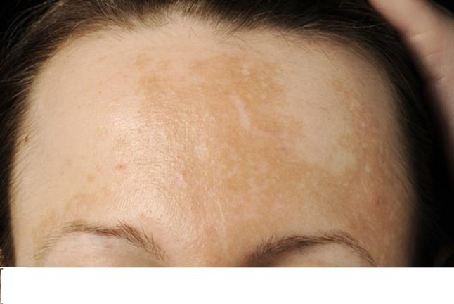 how to get rid of brown sun spots on forehead